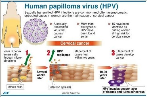 hpv virus leads to cancer)