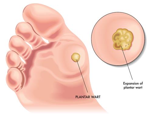 papilloma foot treatment chisturi de giardia în mediu