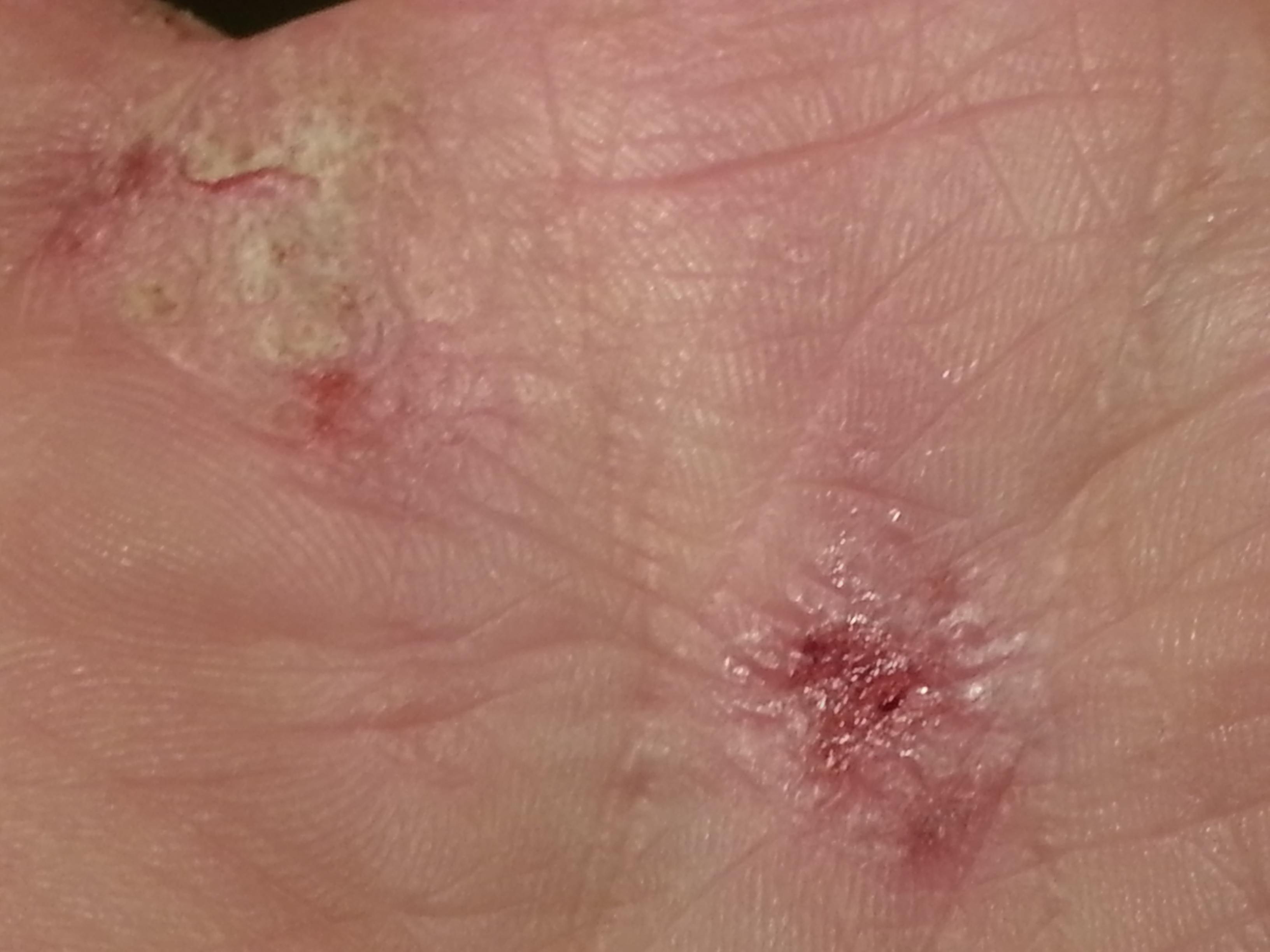 dermatite 6 anni