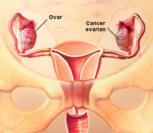 simptome cancer ovare