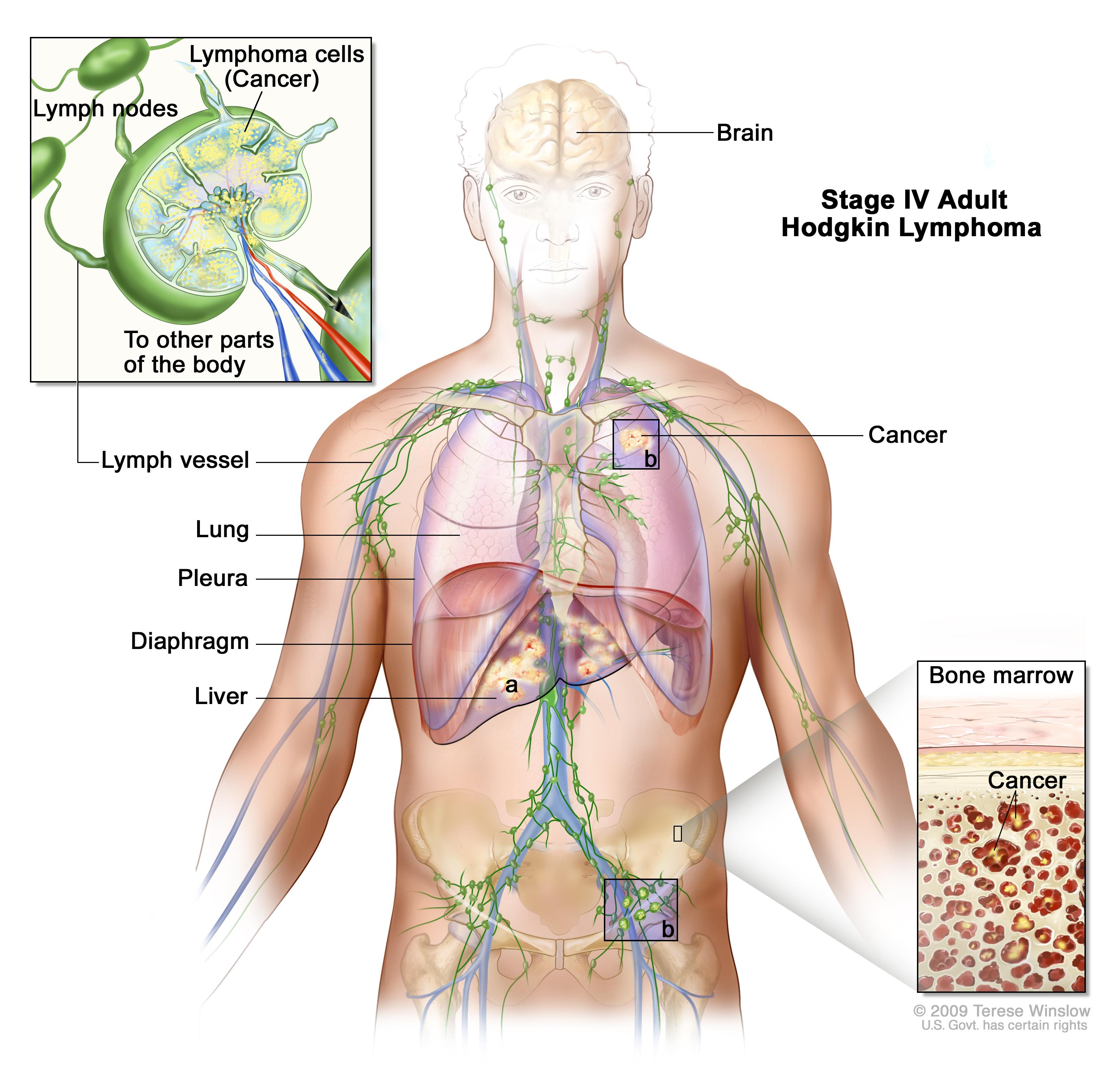 tratamentul parazitului limfatic)
