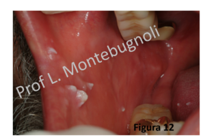 papilloma virus uomo bocca tratament de detoxifiere a organismului