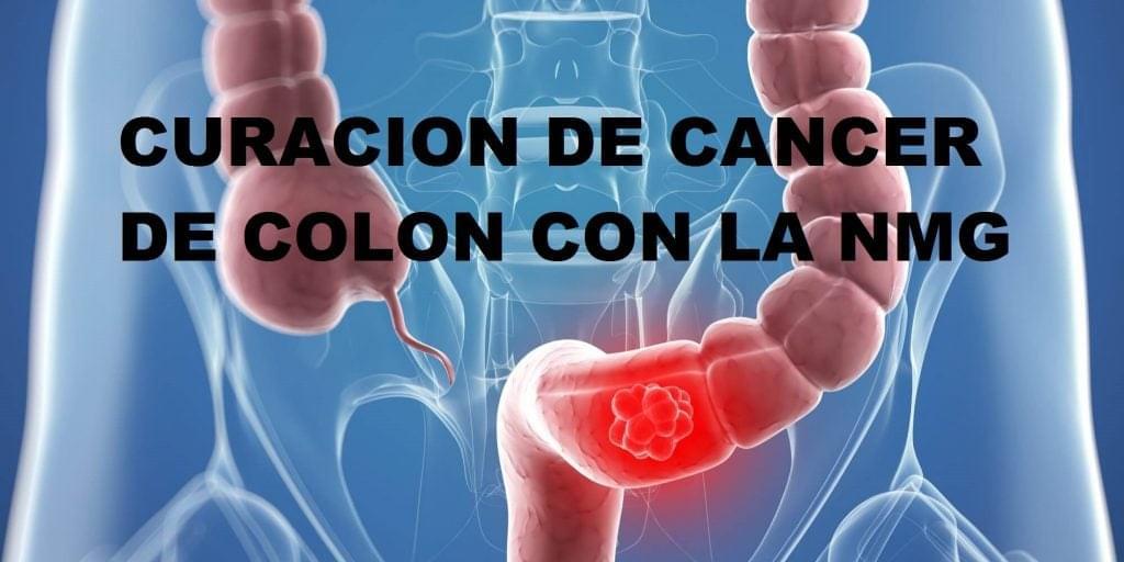 cancer de colon nmg)