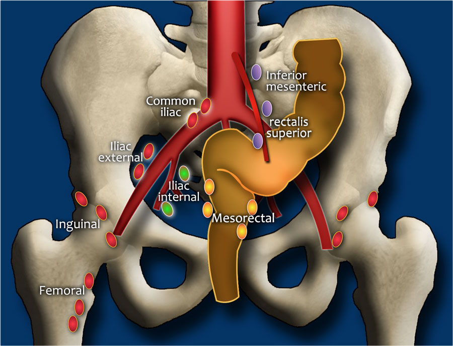 rectal cancer regional lymph nodes)