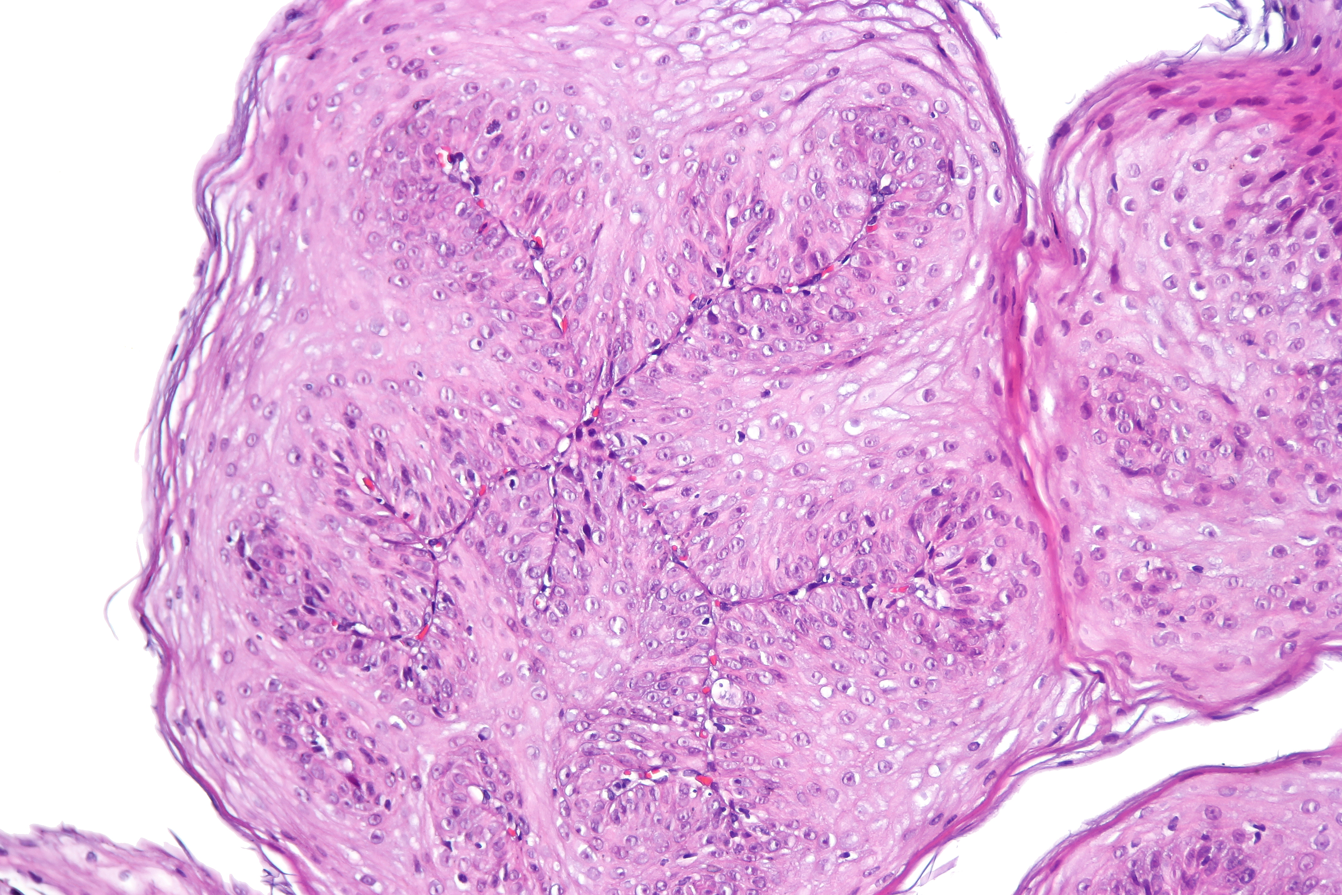 esophageal papilloma