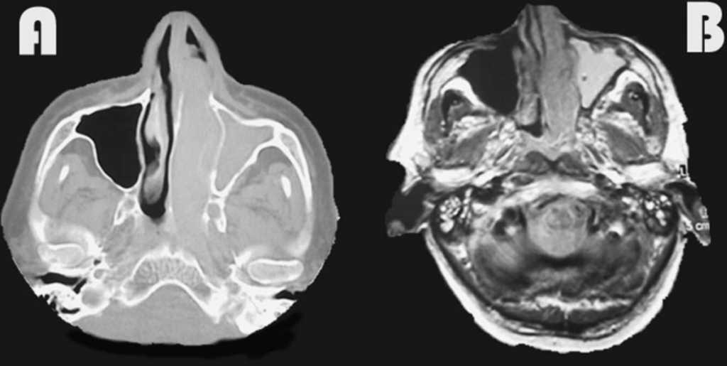Cancerul de prostata este ereditar Papiloma invertido benigno