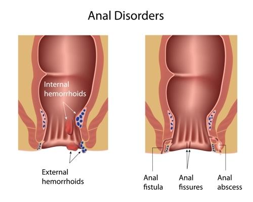 rectal cancer vs piles papilloma virus danni uomo