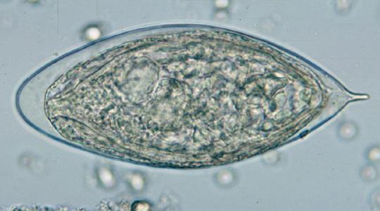schistosomiasis urine