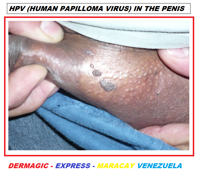 Hpv skin conditions, Mult mai mult decât documente.