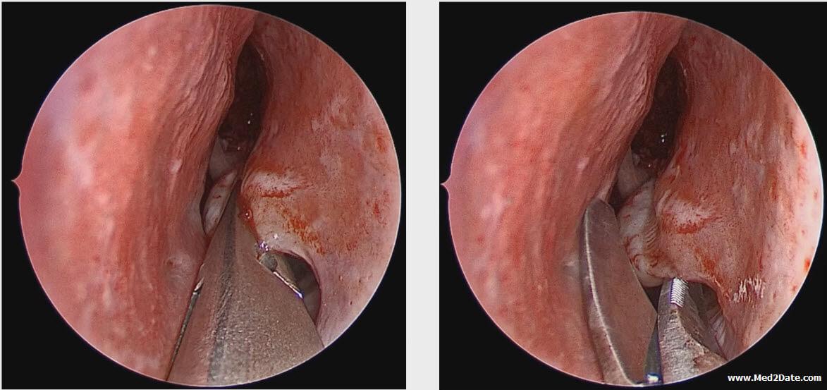 inverted papilloma treatment)