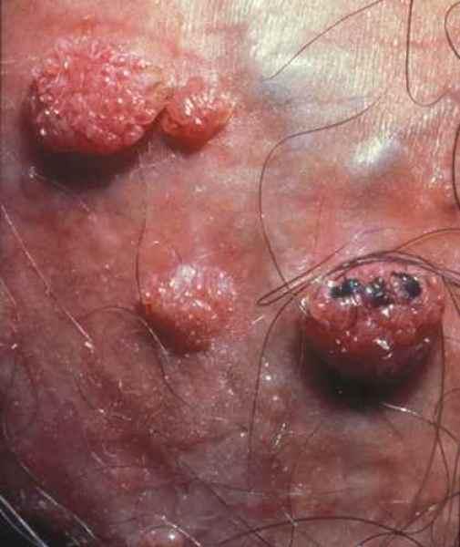 Papillomavirus verrue homme, Traducere