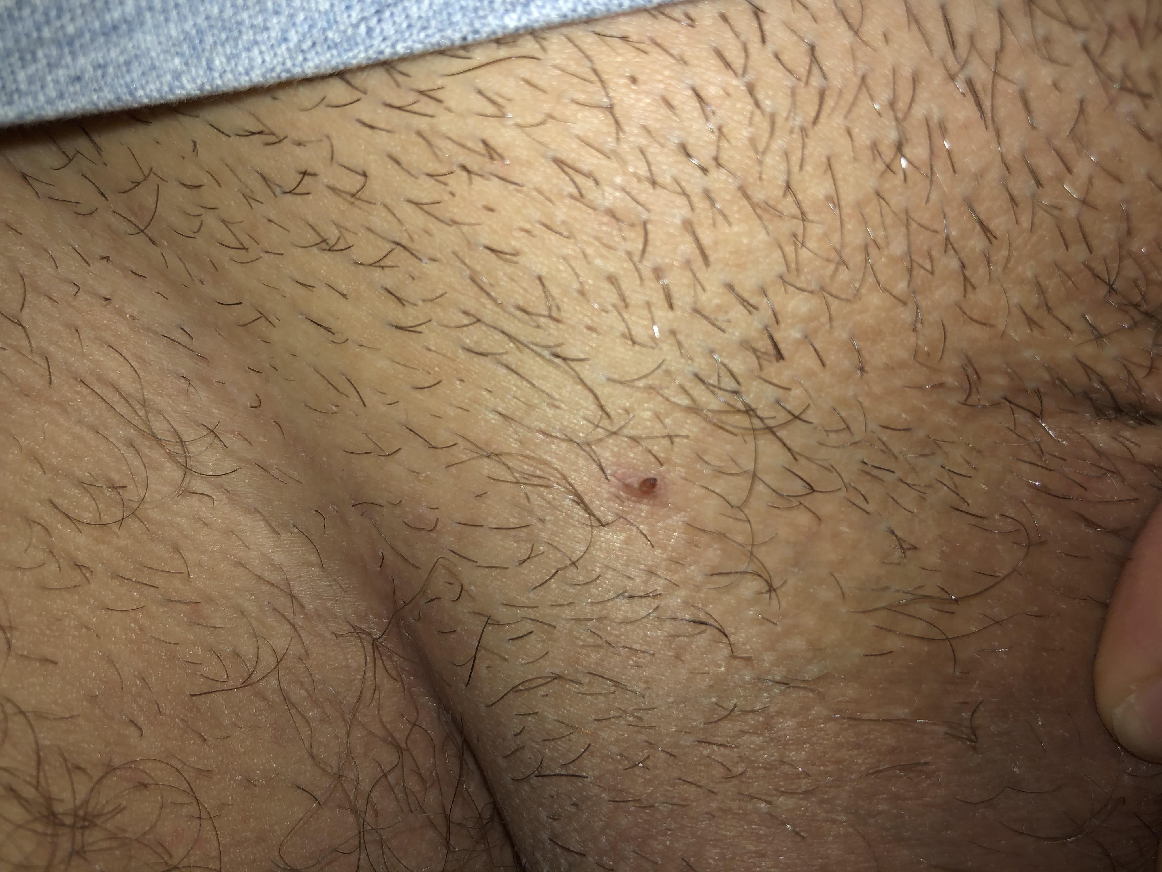 Condyloma acuminatum on thigh