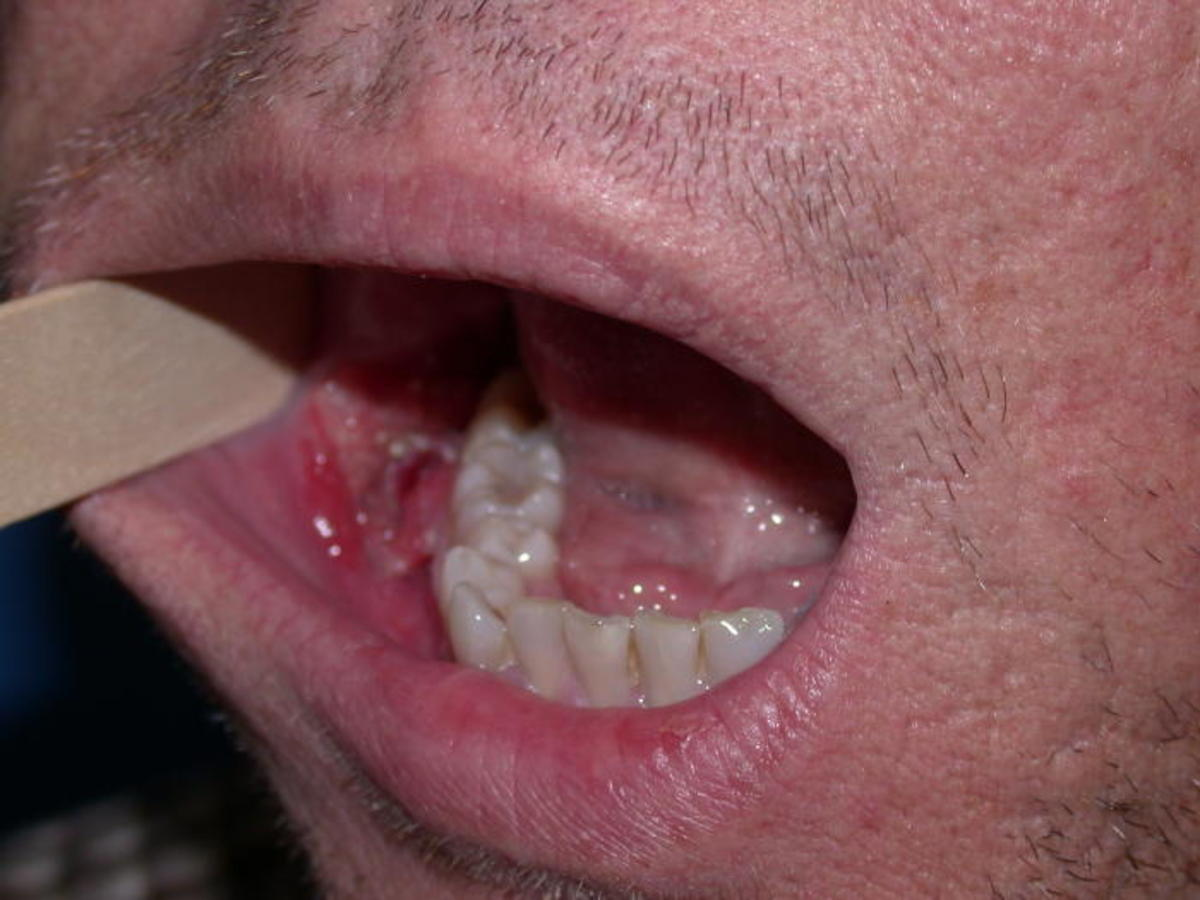 hpv and mouth cancer