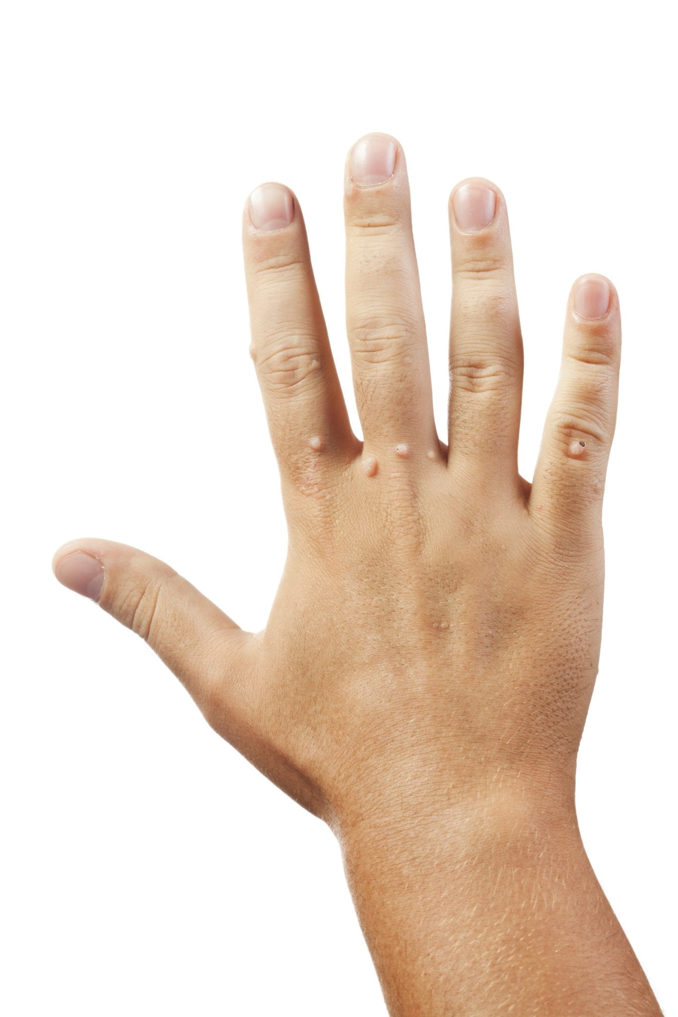 warts on hands prevention