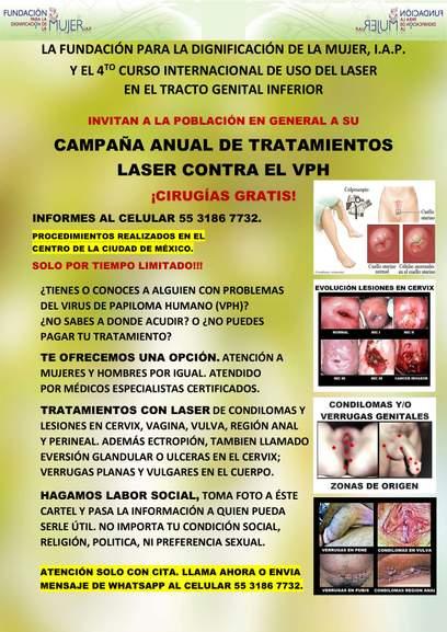 papiloma virus tratamientos