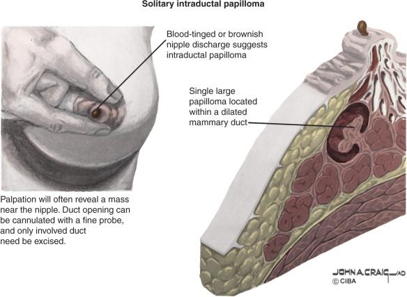 intraductal papilloma size)