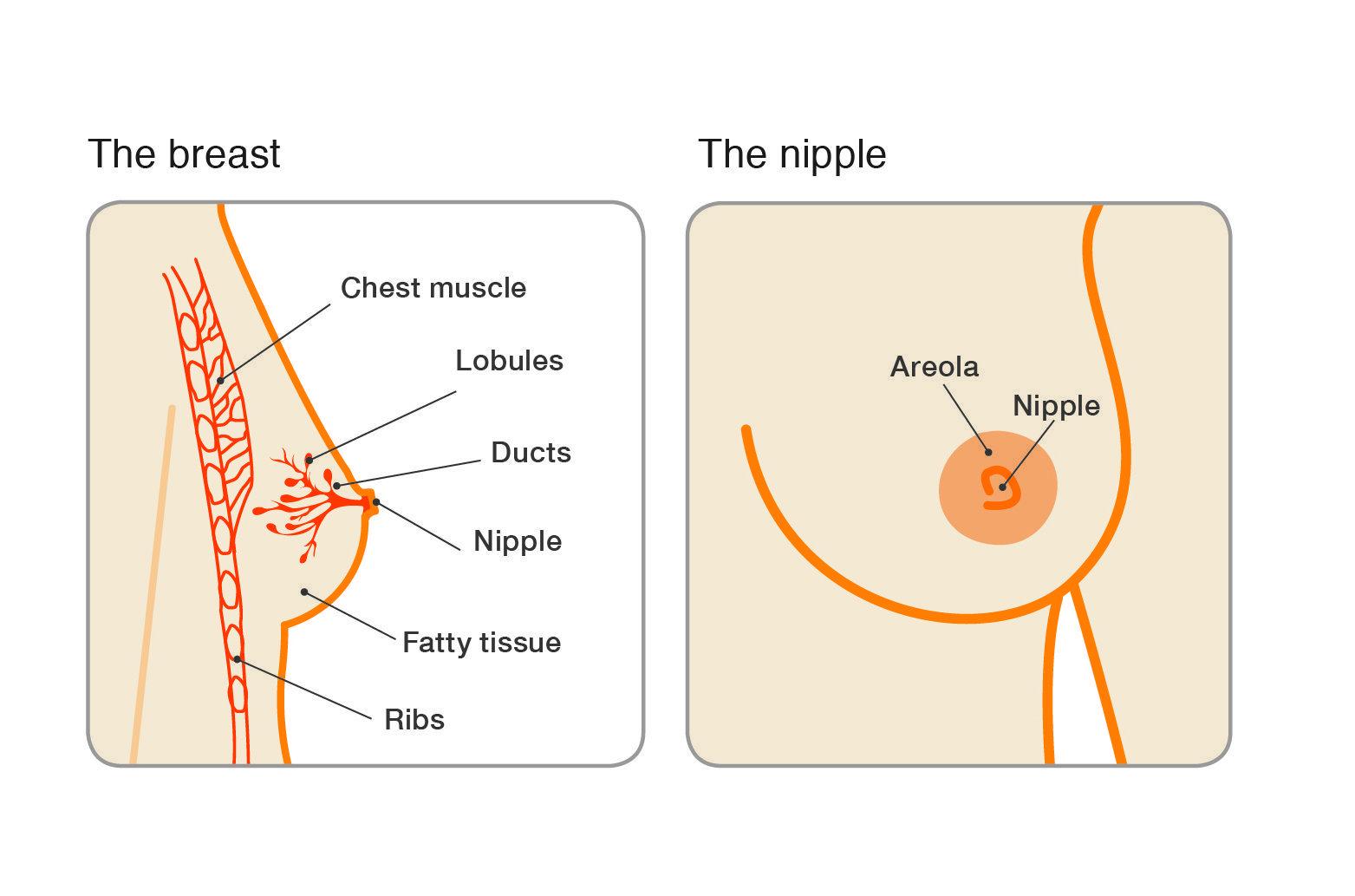 Secretiile Mamelonare, Papilom intraductal simptome