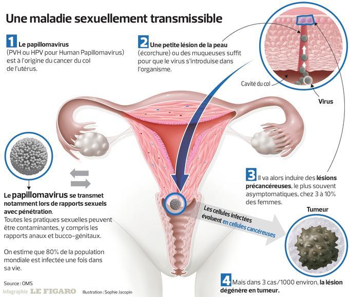 human papillomavirus chez l homme)