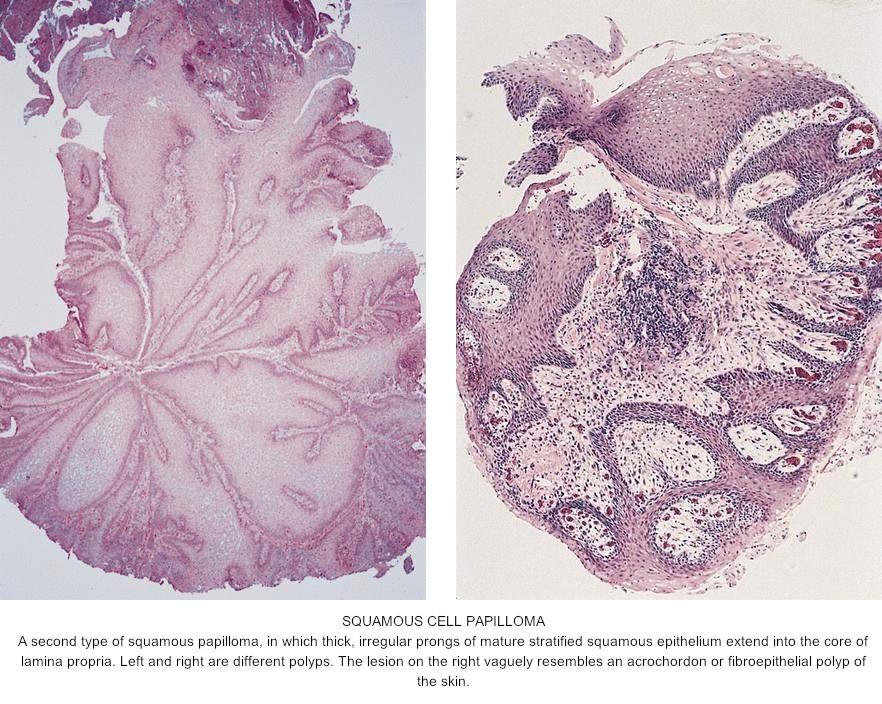 papilloma skin pathology outline)
