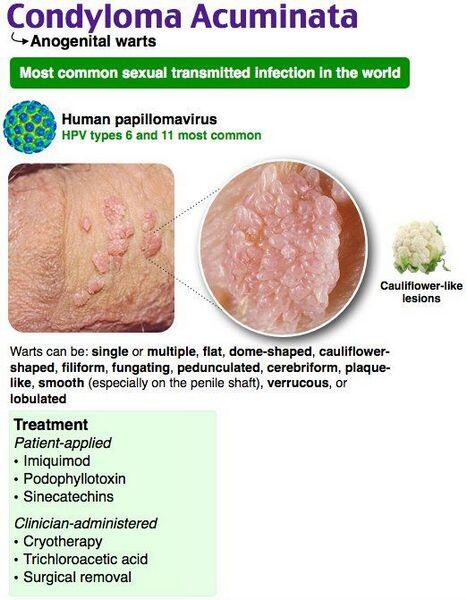 Virusul HPV | Infecția cu HPV - Hpv condylomata acuminata