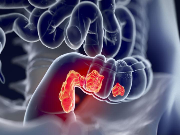 Cancer de colon en mujeres jovenes sintomas - Prostatită cronică edad