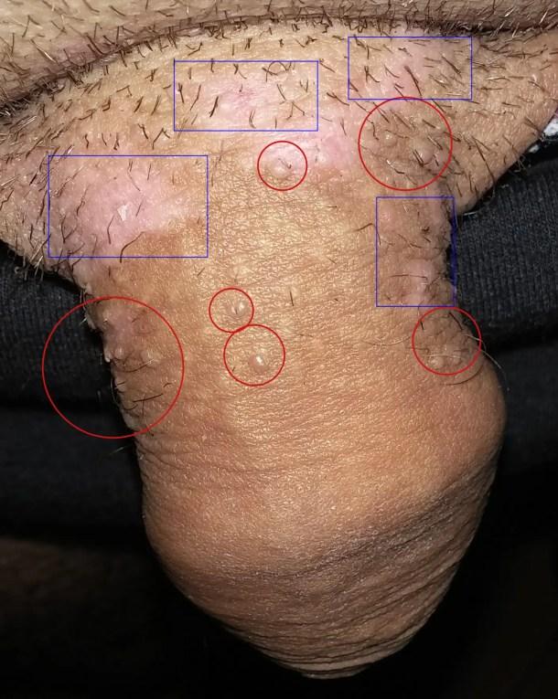 Papilloma virus terapia medica Verucile vulgare
