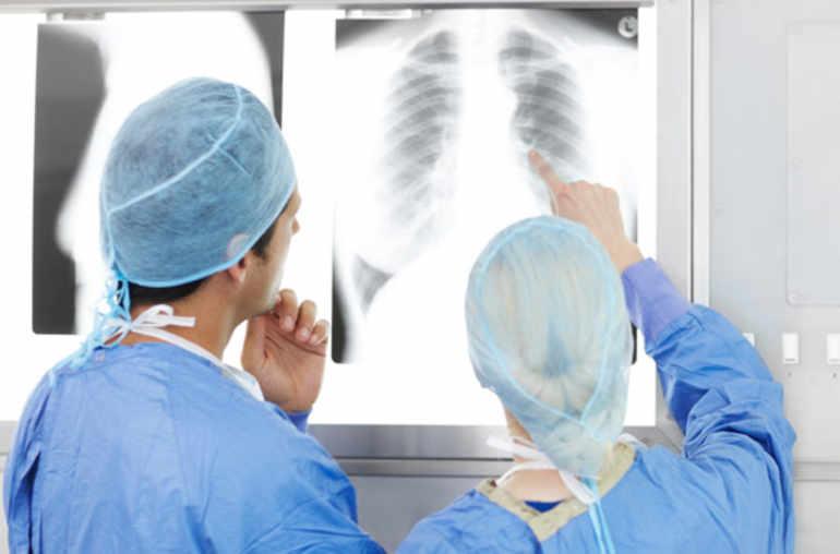 hpv cancer poumon