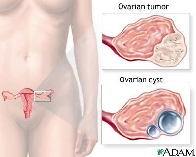 cancerul de ovare se vede la ecograf)