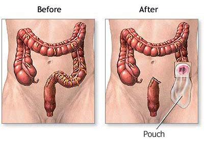 cancer de colon stadiul 3 b