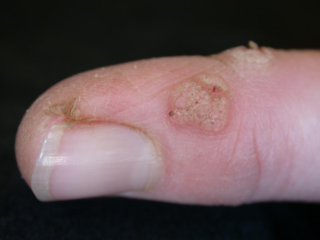 human papillomavirus infection on hands