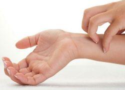 Mâncărime pe piele. Cauze și tratament