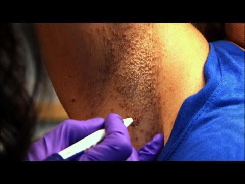 vestibular papillomatosis dermnet plan corporal tip platyhelminthes