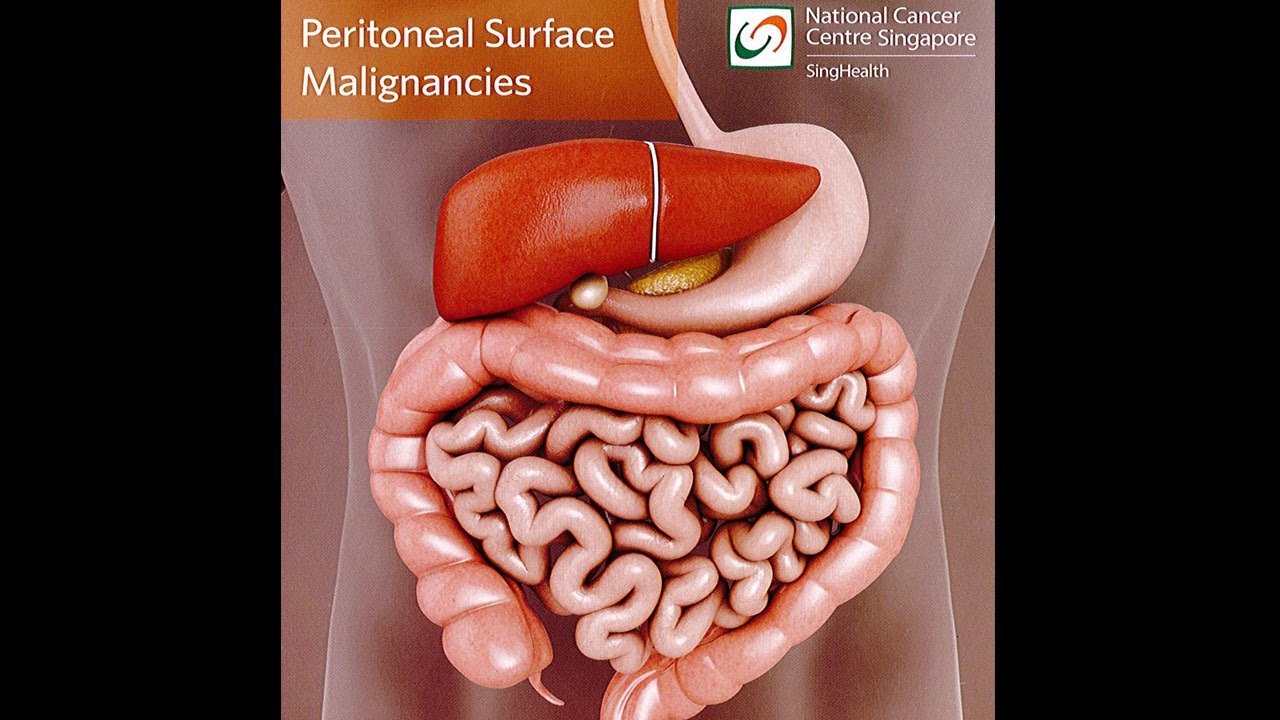 peritoneal cancer what is it)