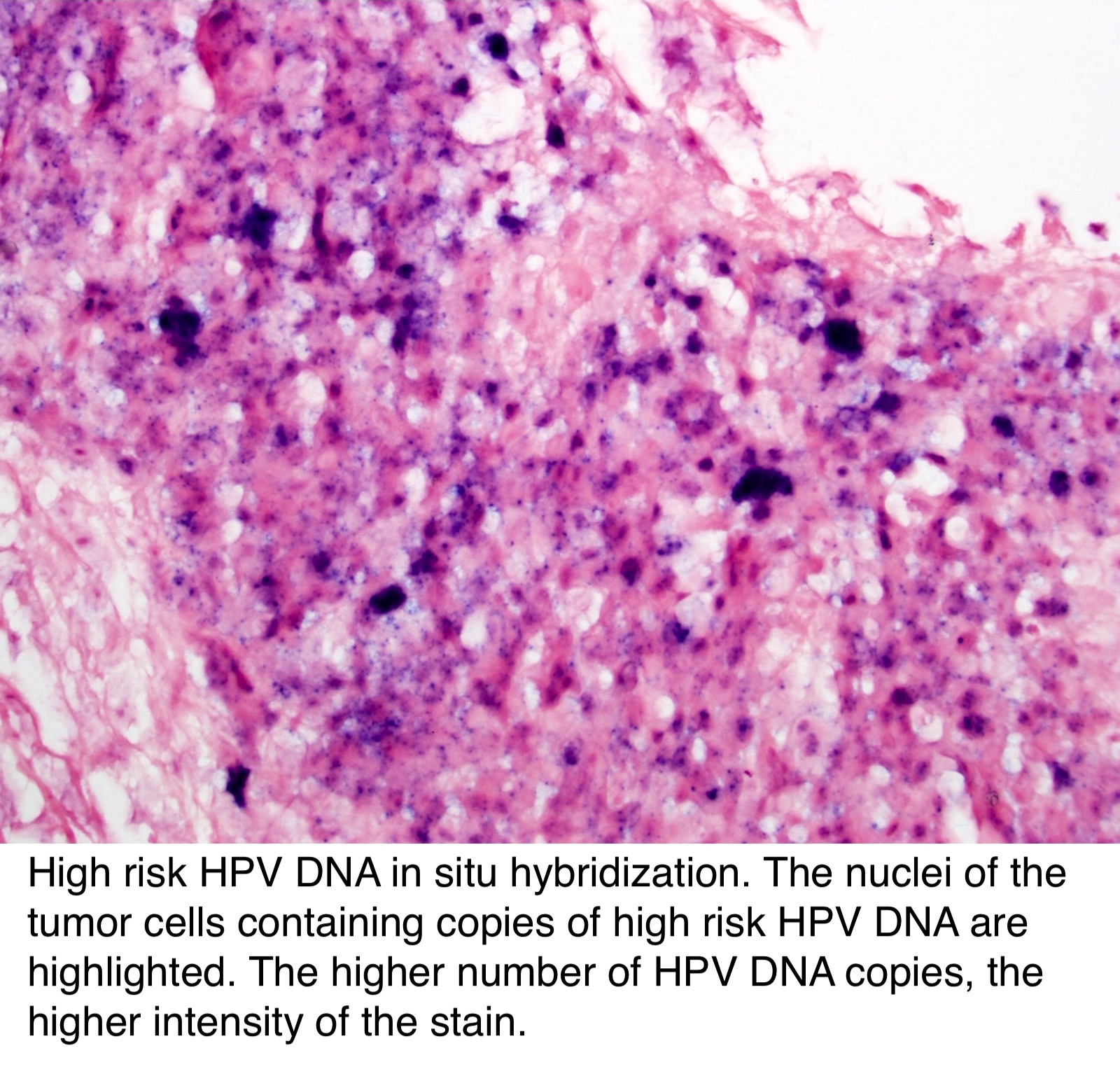 hpv associated oropharyngeal cancer pathology outlines)