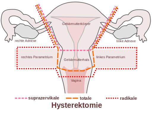 Viermi intestinali la om simptome