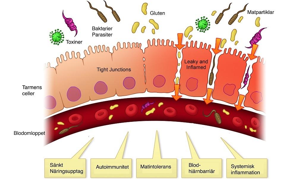 ce este enterobioza periculoasă