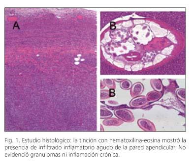 Enterobius vermicularis bruxismo - Helminths tratament alternativ