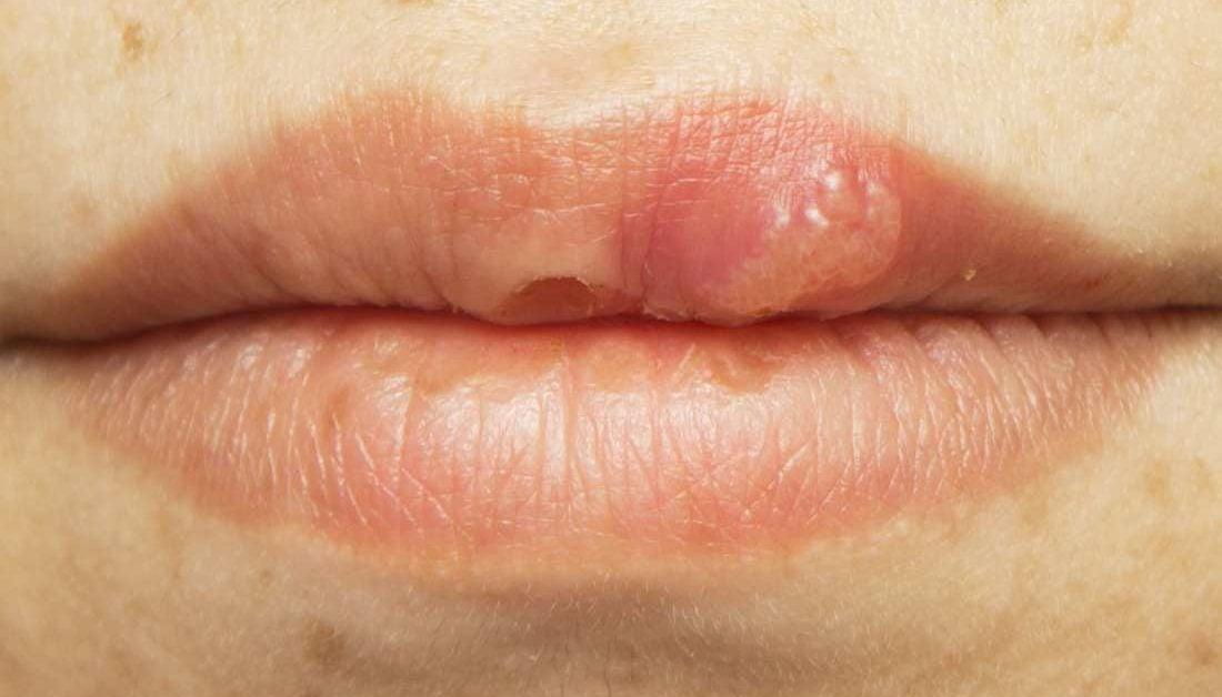 hpv lip sores