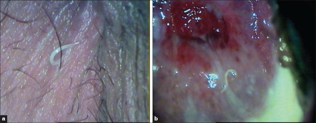 enterobius vermicularis vulvovaginitis