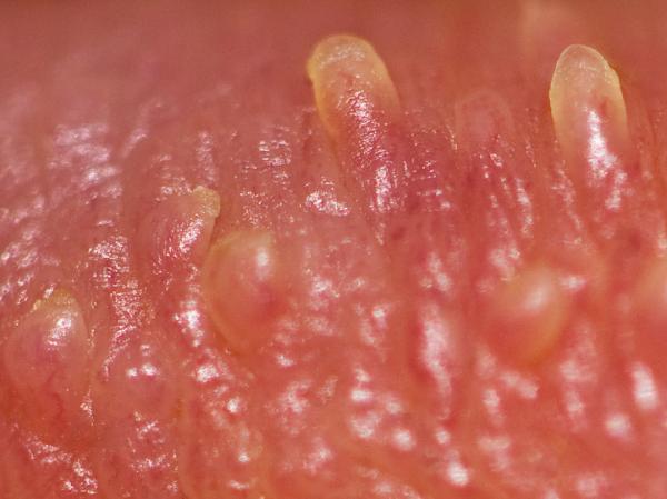 papiloma virus en mujeres sintomas)