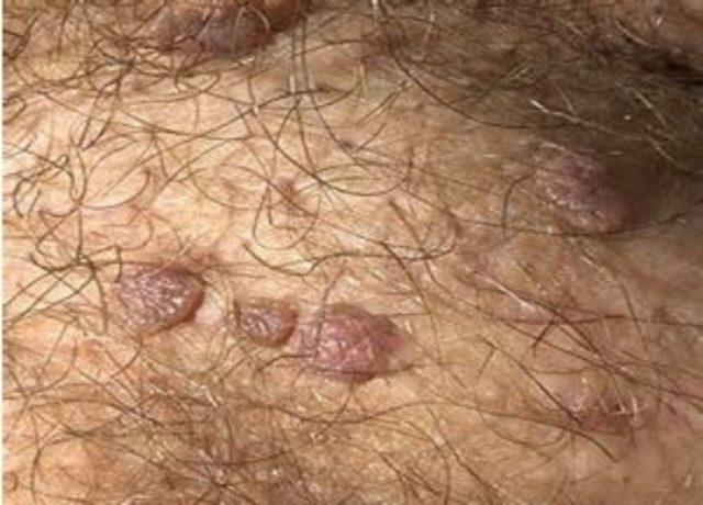 Human papilloma virusu tedavisi