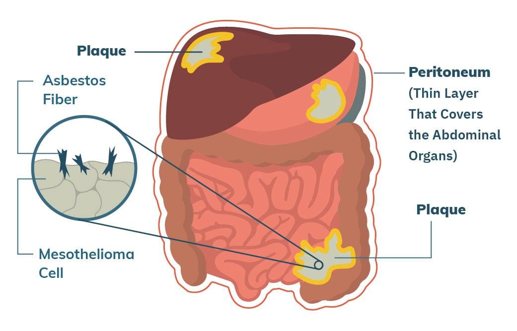 cancer peritoneal mesothelioma)