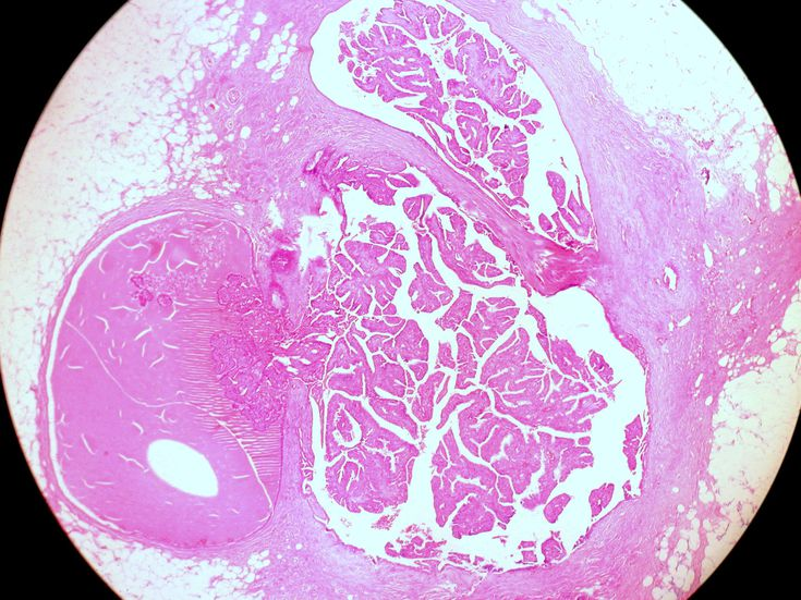 natural treatments for intraductal papilloma hpv impfung jungen merkblatt