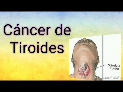 cancer in gat metastaza