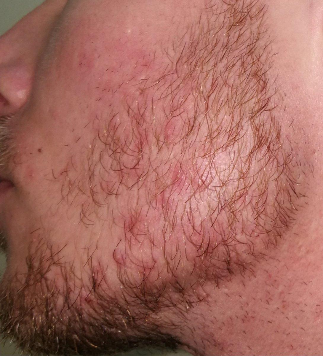dermatite barba