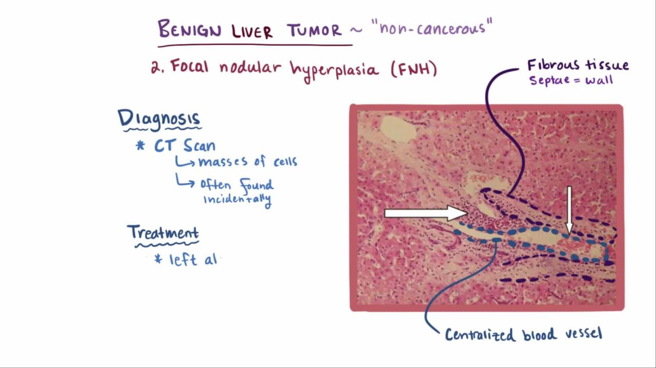 benign cancer tumor)