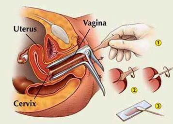 Esami per il papilloma virus uomo Care sunt lojei paraziți în intestine