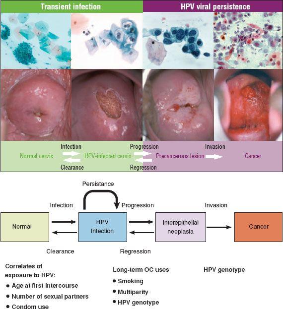 papiloma precancer lesion