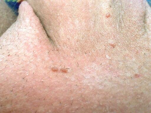 papilloma virus warzen)