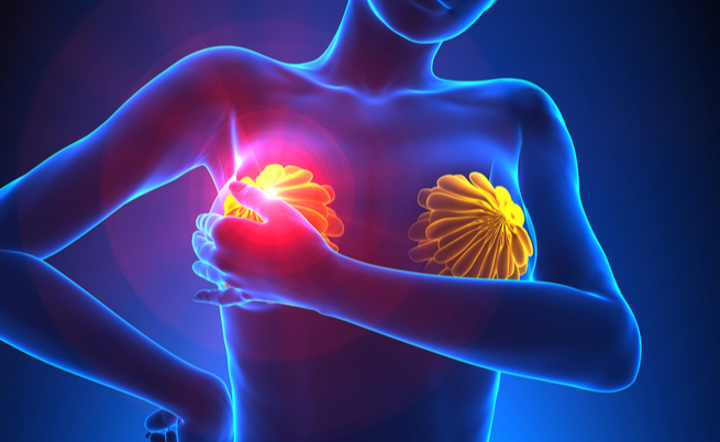 papilloma duttale sintomi